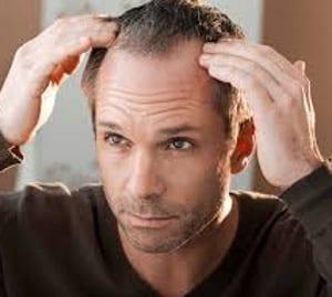 pelucas para hombre y Protesis capilares indetectables