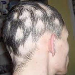 Tratar trastornos del pelo