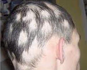 Trastornos capilares: alopecia areata