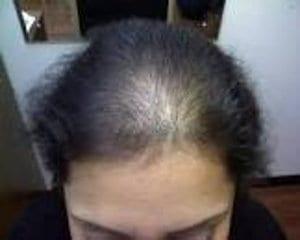 Trastorno capilar: calvicie