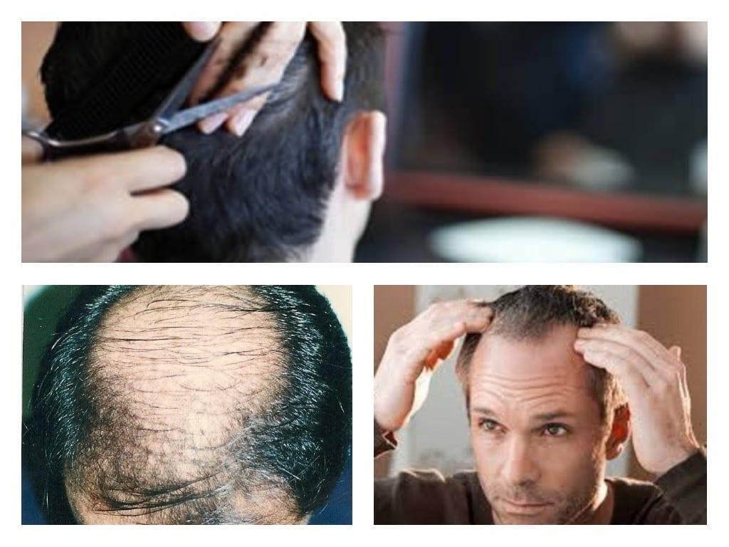 Consejos para sobrellevar la caida del cabello
