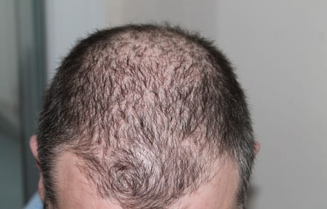 enfermedades autoimnunes que causan la caída del cabello