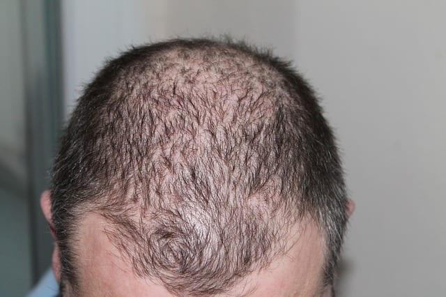 imagen de una cabeza con caída de cabello